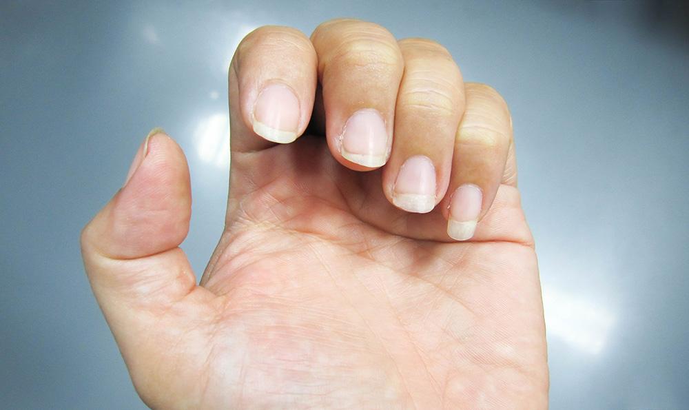 Unhealthy looking nails.